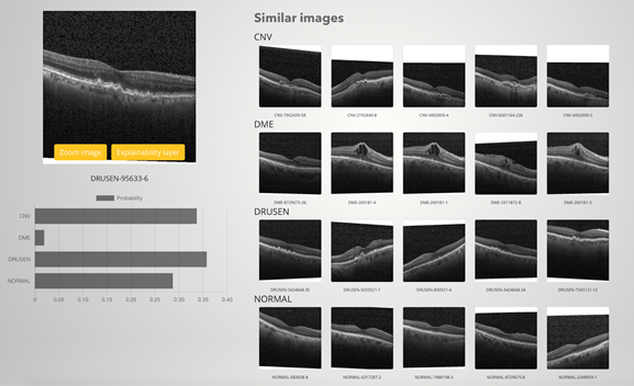 XAI user interface with the classified image on the left and similar images on the right.